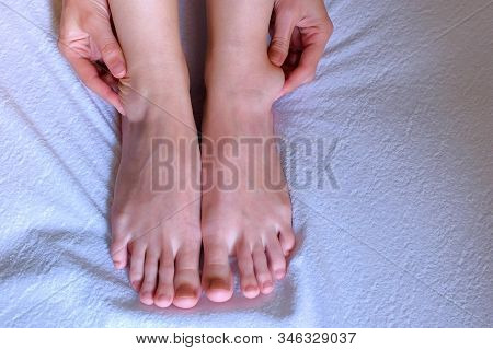 Woman Palpates Hand Leg Ankle Hygroma In Joint, Feet Closeup View. Tumor, Inflammation Of The Ankle