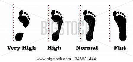 Flatfoot. 4 Footprints Of A Person With Varying Degrees Of Flat Feet.