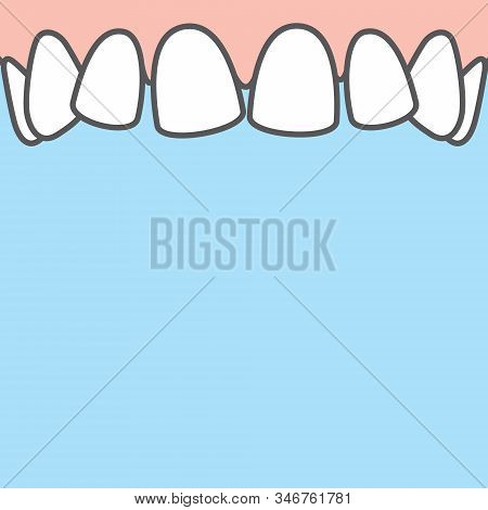 Blank Banner Upper Askew Teeth Illustration Vector On Blue Background. Dental Concept.