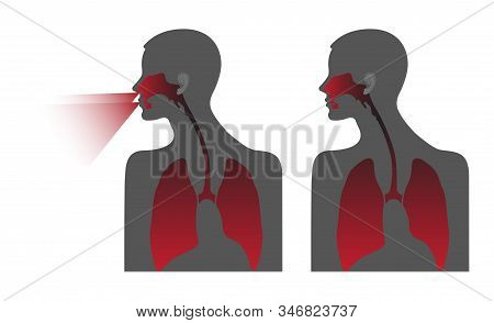 Colds And Inflammation. Flu. Silhouette Of Human Lungs With Inflammation. Pneumonia. Vector Illustra