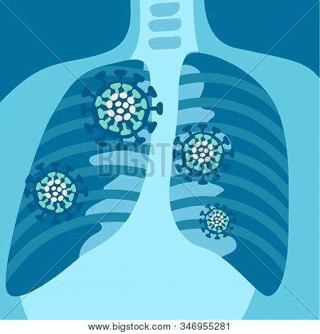 X-ray Of Respiratory System With Symptoms Of Pneumonia Or Coronavirus 2019-ncov
