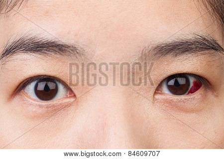 Eye injury or infected for healthy concept macro closeup poster
