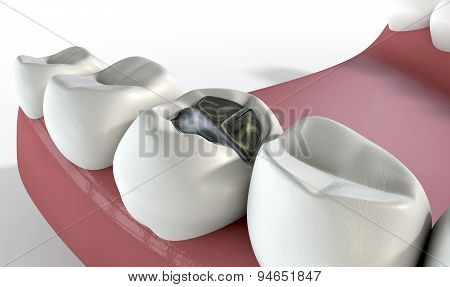 A lead cavity filling on one molar in a set of false human teeth set in gums with on an isolated background poster
