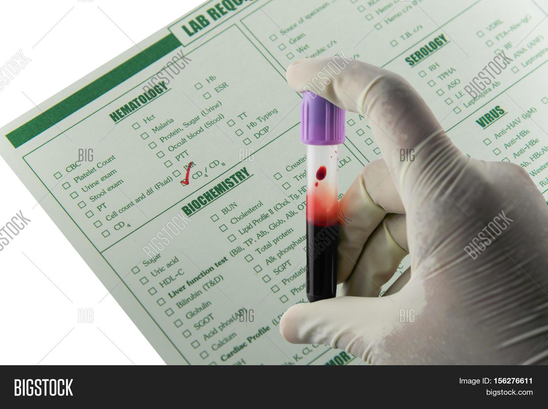 Immunology Blood Image Photo Free Trial Bigstock