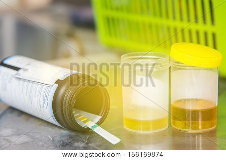 Set of laboratory test,Urine sample test in laboratory