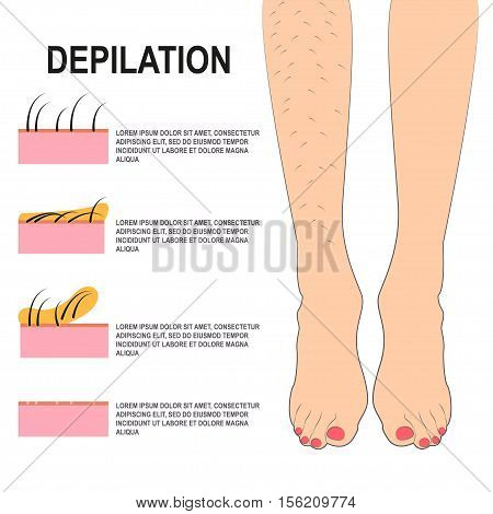 Depilation Vector illustration Female legs before and after waxing Scheme of the process of depilation