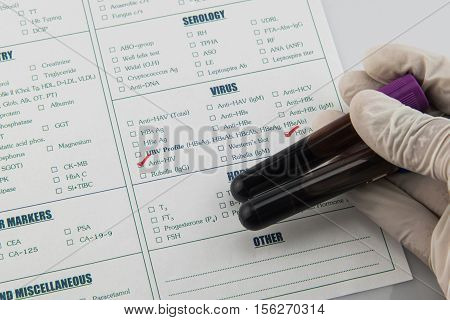 Blood requisition for HIV in laboratory,Specimen in  tube blood collection