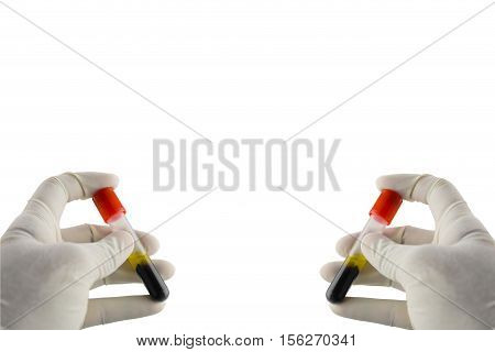 Hand holding test tube with blood plasma ready for testing isolated on white background,Test tubes in laboratory isolated on white background,Background layout with free text space.