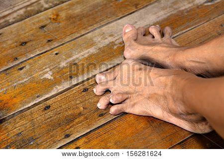 Old woman's foot deformed from rheumatoid or gout arthritis