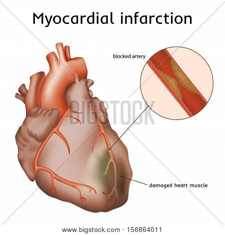 Myocardial infarction. Heart attack. Blocked artery, damaged heart muscle. Anatomy illustration. Red image, white background