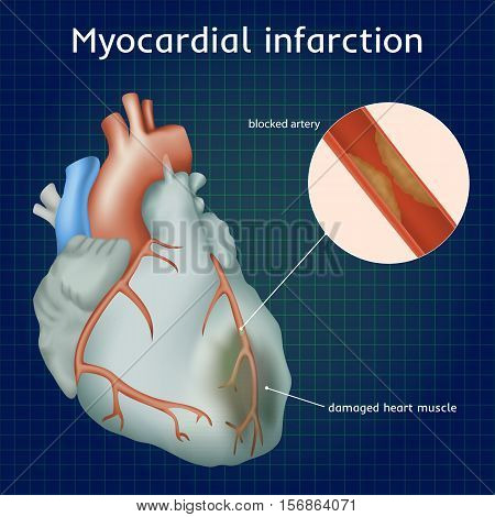 Myocardial infarction. Heart attack. Blocked artery, damaged heart muscle. Anatomy illustration. Colorful image, dark blue science background