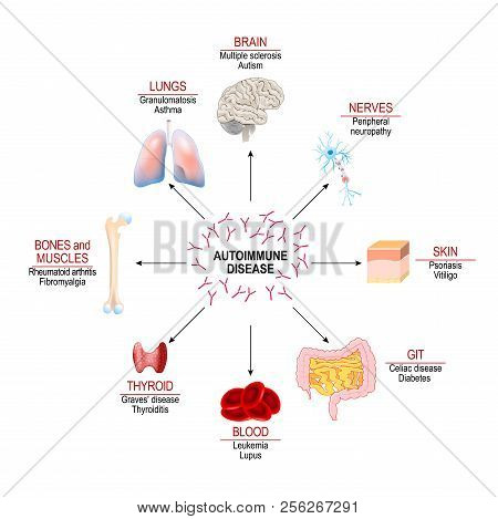 Tissues Of The Human Body Affected By Autoimmune Attack. Vector Diagram For Your Design, Educational