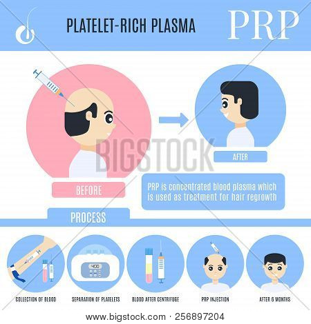 Platelet-rich plasma infographics for male alopecia treatment poster