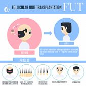 Follicular unit transplantation infographics for male alopecia t poster