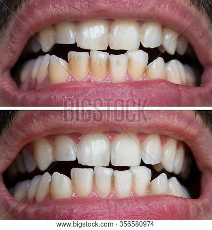 Natural Teeth Bleaching, Teeth Before And After Whitening, Dental Care And Treatment Process