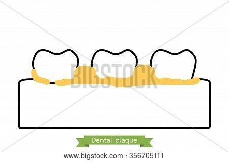 Dental Plaque Or Tartar, Cause Of Tooth Periodontal Disease - Teeth Cartoon Vector Outline Flat Styl