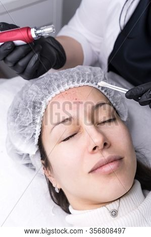 Cosmetologist Making Mesotherapy Injection. Microneedle Mesotherapy. Treatment Woman At Beautician.