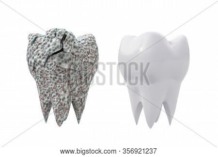 Dirty Broken Molar Tooth Isolated On White Background. 3d Illustration
