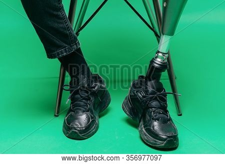 Cropped View Of Disabled Young Man With Prosthetic Leg, Artificial Limb Concept. Studio Shooting On