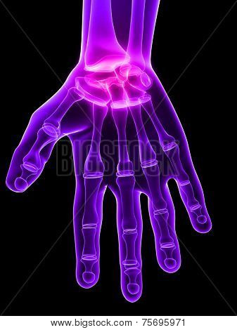 inflammated hand