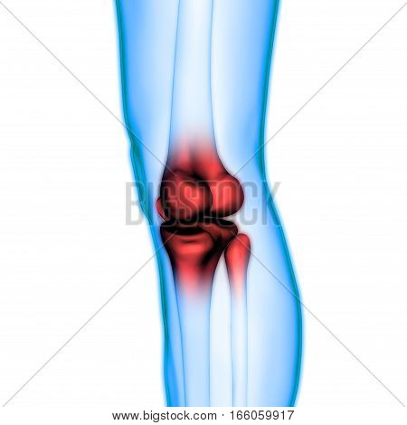 3D Illustration of Human Body Bone Joint Pains (Knee Joint)