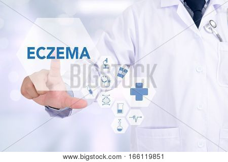 Eczema Dermatitis Eczema Skin Of Patient , The Problem With Many People