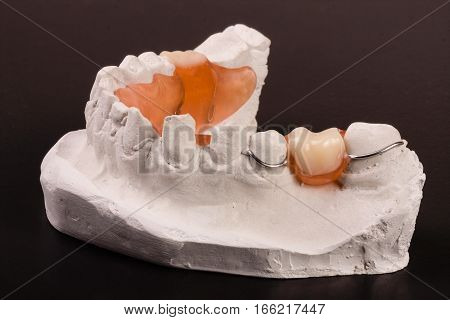 a plaster cast of teeth with removable partial denture on a dark background.