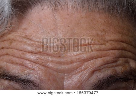 wrinkles on the forehead of a woman