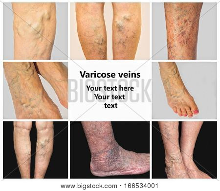 The collage from images of varicose veins on a legs of old woman and senior man