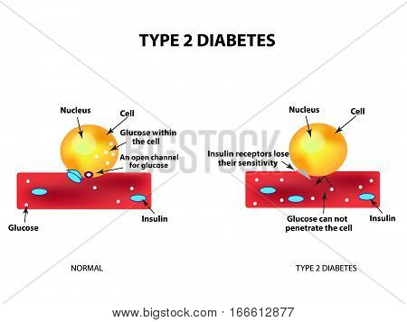 The absorption of glucose by the cell. Type 2 diabetes. Increase and decrease blood sugar. Insulin. Infographics. Vector illustration on isolated background