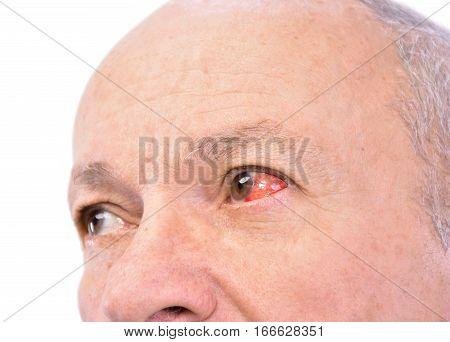 Senior Man With Irritated Red Bloodshot Eye