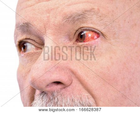 Senior Man With Irritated Red Bloodshot Eye