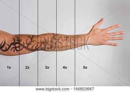 Laser Tattoo Removal On Man's Hand Against Grey Background