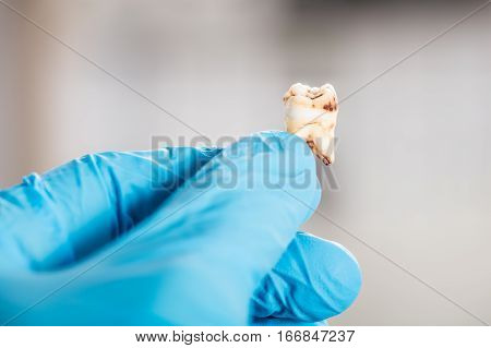 Close-up Of Dentist Hand In Glove Holding Decay Tooth