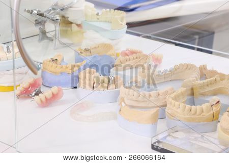 Many plaster jaws and dentures in modern dental clinic, close up view