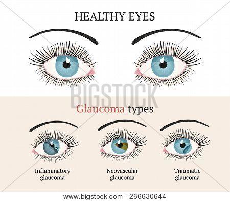 Eye Disease. Ophthalmology Flat Health Vector Illustration. Glaucoma Types Ans Healthy Eye. Vector F