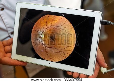 Woman Unergo Eyes Test. Ocular Fundus. Visit To The Doctor.