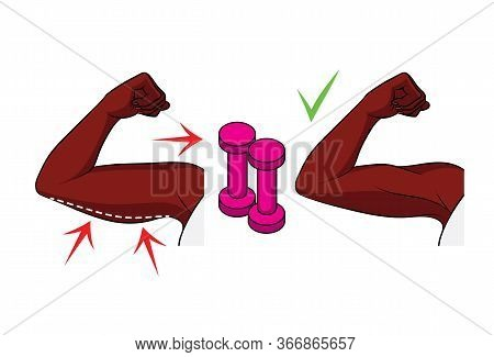 Colored Vector Illustration. Female Black Hands Side View. Fat On The Female Triceps. The Result Of