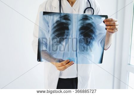 The Doctor Is Holding An X-ray Of His Lungs. X-rays Of A Mans Lungs. International Doctors Day. Doct
