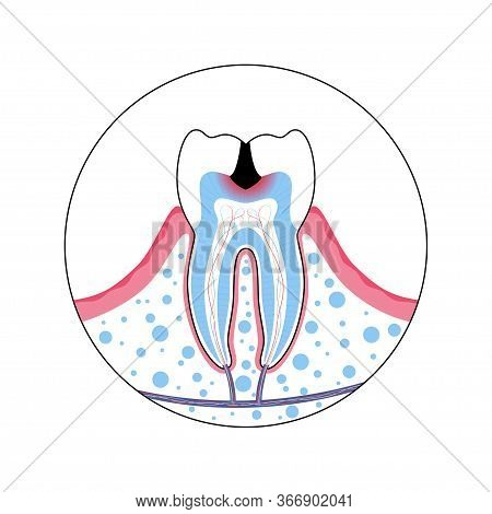 Vector Isolated Illustration Of Tooth With Caries. Teeth Decay Medical Poster. Pulp Decay And Pulp I