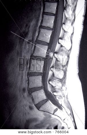 lumbar spine mri with arrow pointing to tumor