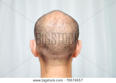 close up shot of a male head of thin hair poster