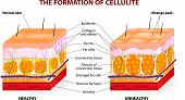 The formation of cellulite.  Cellulite occurs in most females and rarely in males. Vector diagram. poster