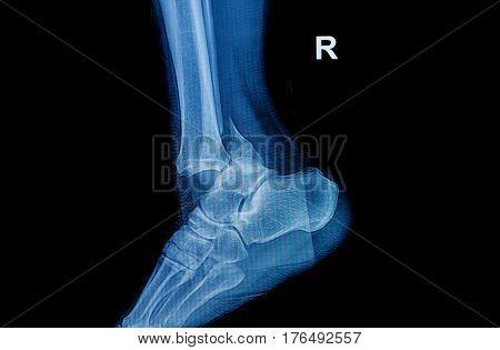 Fracture Ankle Fibula Bone ( Leg Bone ) X-ray Of Leg Side And View