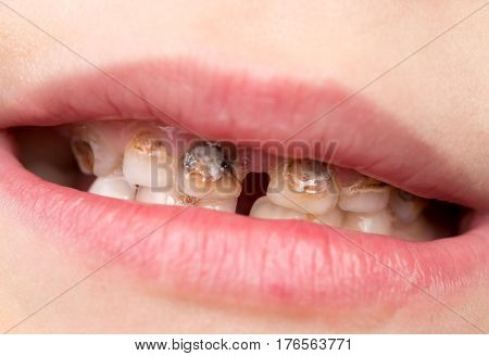 Dental medicine and healthcare - human patient open mouth showing caries teeth decay .