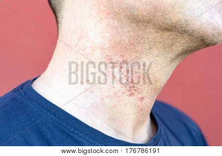 Skin Irritation After Cosmetic Surgery