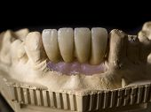 Monolithic zirconia restorations implant supported with the ceramic load in vestibular back background poster