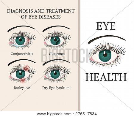 Eye Disease. Most Common Eye Problemc - Conjunctivitis, Glaucoma, Dry Eye Syndrome, Barley Eyes. Oph