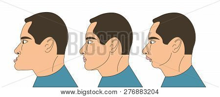 Mesial And Distral Bite, Man With Malocclusion, Lower Jaw Extended Forward, Lower Jaw Pushed Back, B