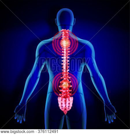 X-ray Of The Spine. Inflammation In The Human Spine. Vector Illustration.